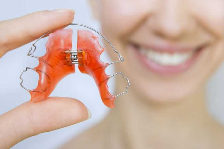 Why you need to wear your retainer