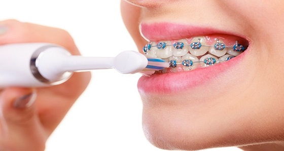electric toothbrush for braces