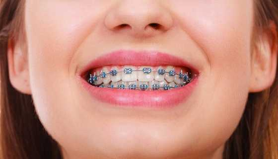 Cost of Metallic Braces