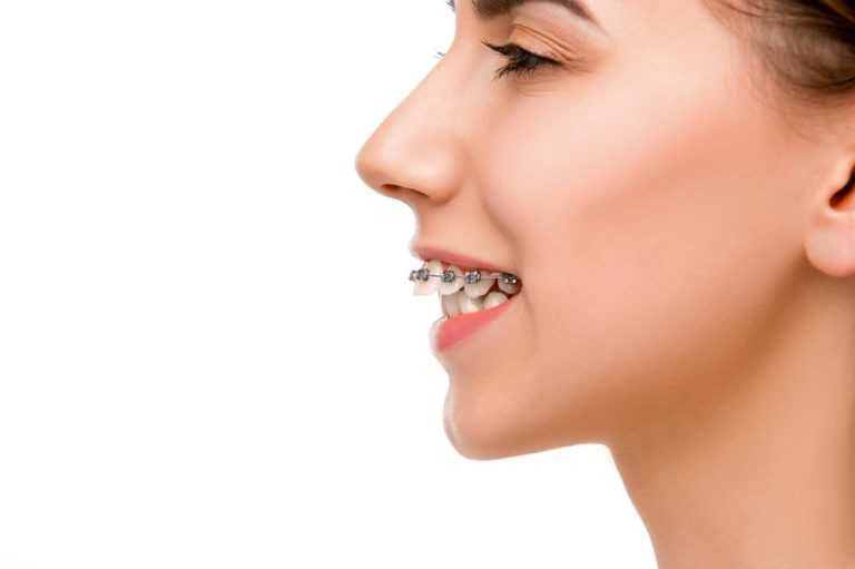 Difference between overjet and overbite