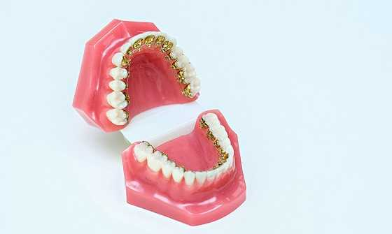 Lingual Braces Treatment