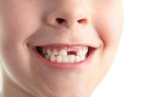 Missing teeth congenitally