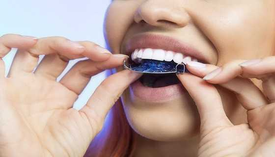Removable or permanent retainer