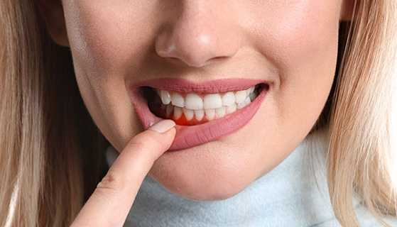 Tooth decay and gum disease