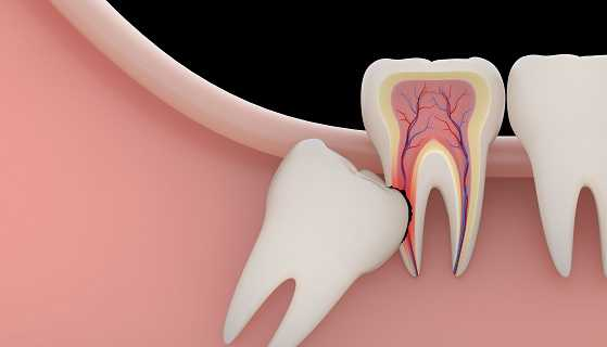 What does impacted tooth mean