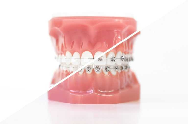 differences-between-Metallic-and-Ceramic-Braces