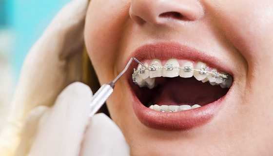 how much duration take to straighten teeth with Metal Braces