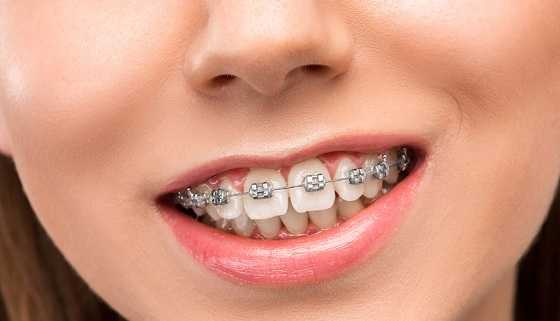 overjet and overbite be fixed with the braces