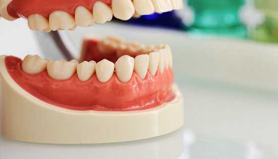 Bone loss can be prevented Dental Implant