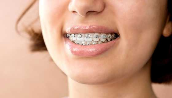 Dental Braces with set off metal Braces