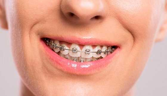 cost of Clear Braces