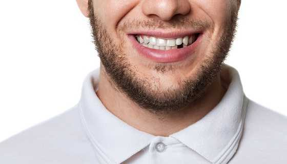 Teeth can be replaced with dental implants