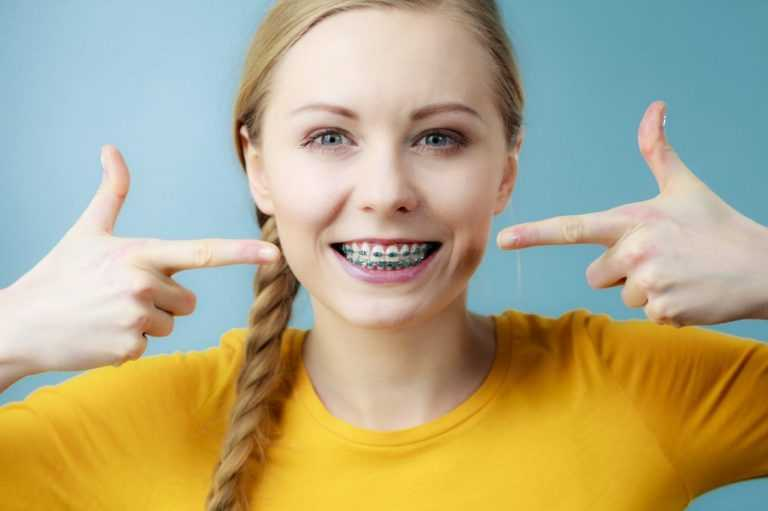 These common braces myths