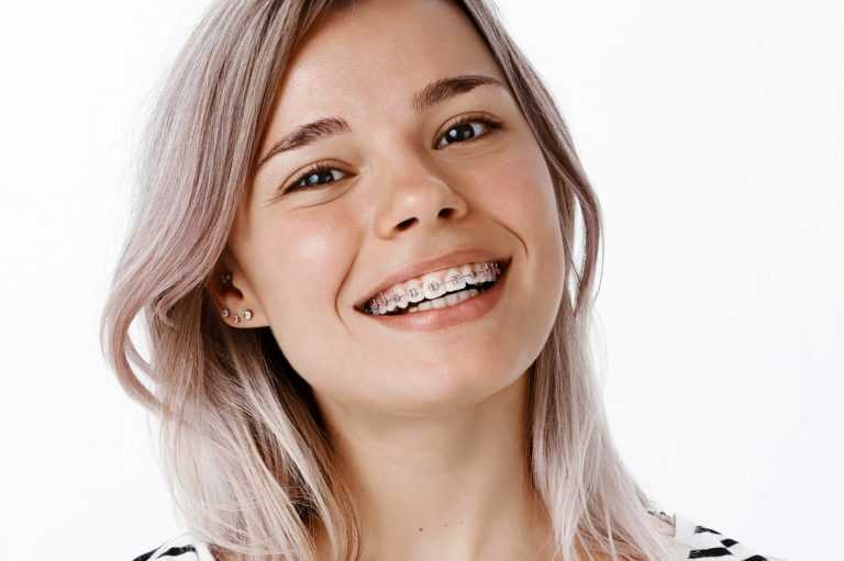 What-are-more-options-apart-from-Metal-Braces