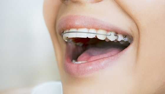 What is permanent retainer