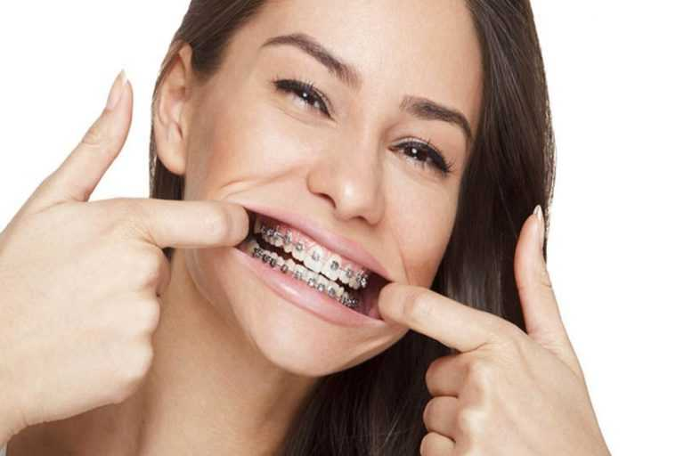 Which-factors-affect-cost-for-the-Orthodontic-treatment