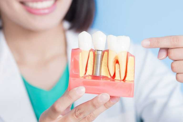 Why dental implants are a better option