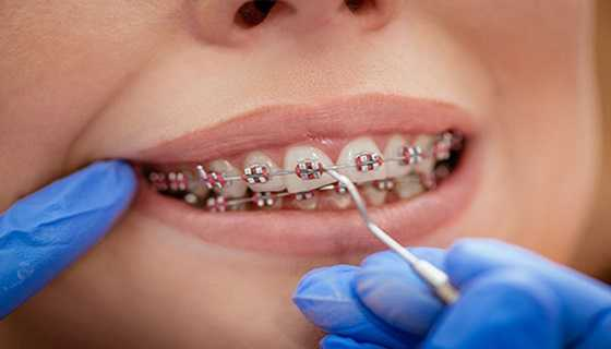 Reasons to get Braces