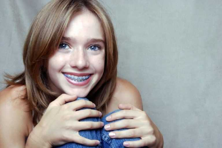 reasons-to-get-braces