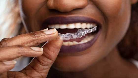 at home aligners