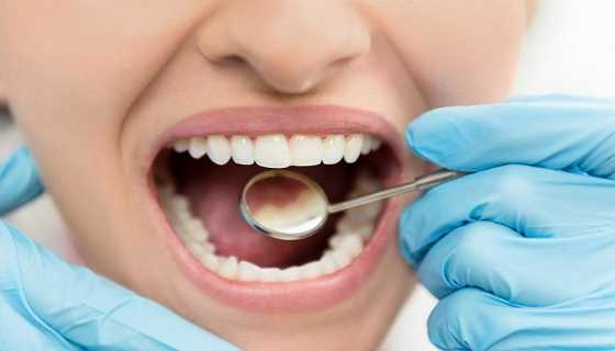 reduction of tooth decay