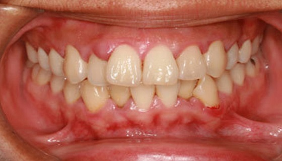 Treating the Gingivitis