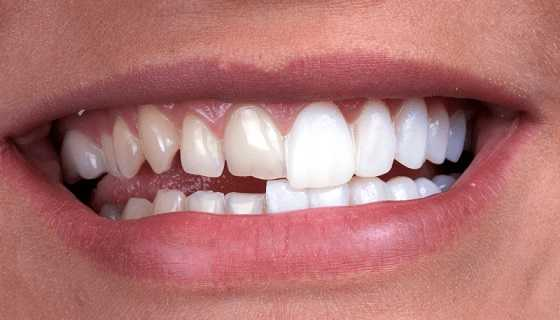 Veneers for teeth