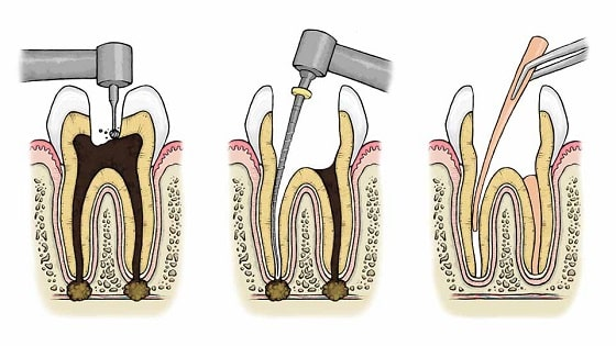 How is a root canal done