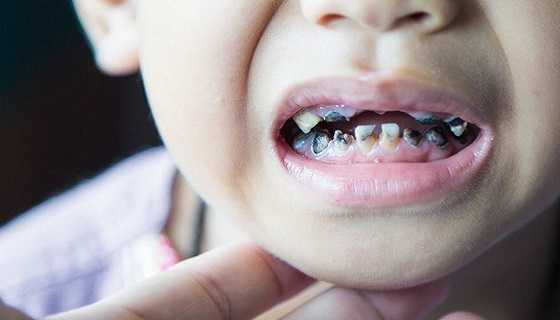Tooth-Decay-in-Kids
