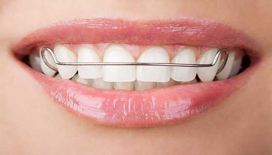 dental Retainers