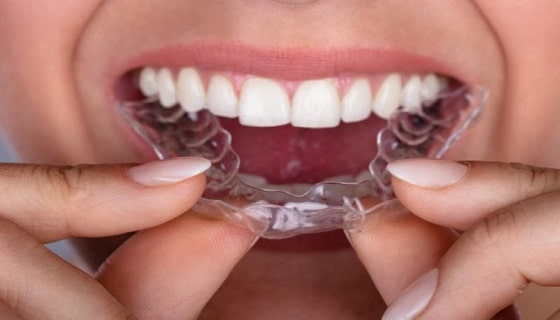 retainer-for-teeth
