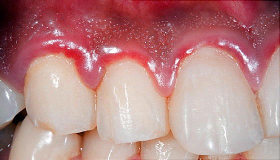 Avoid the gum infection