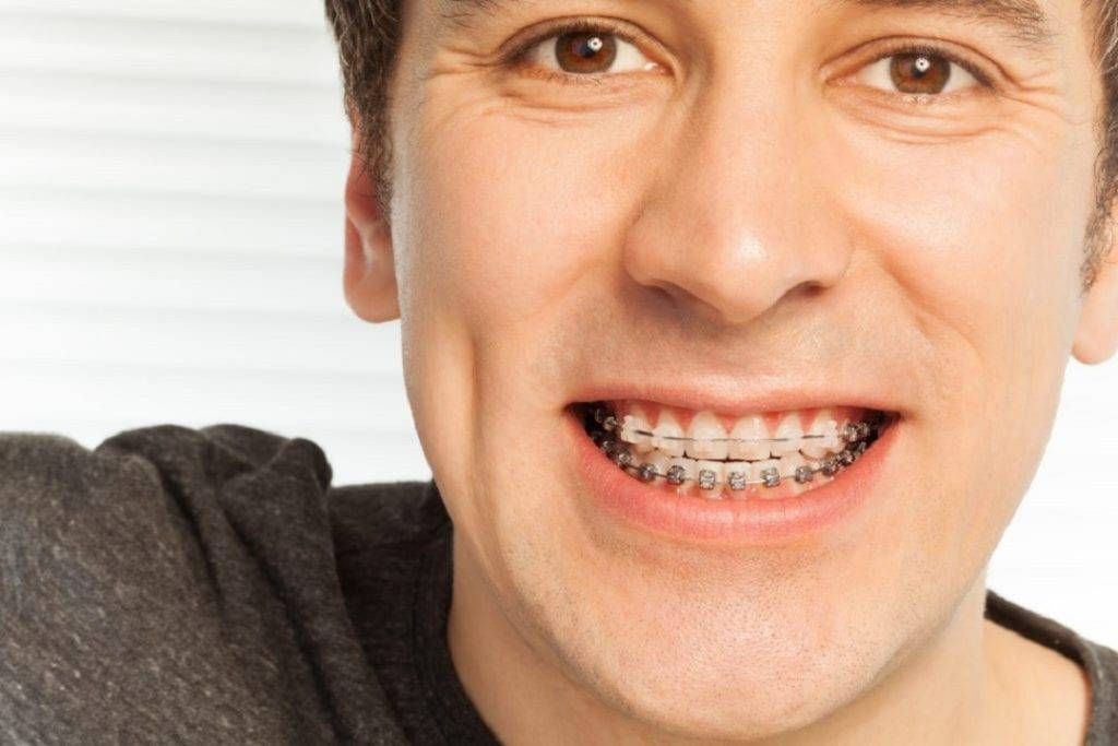 Braces treatment for the Gap between Teeth