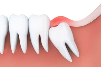 Pain in the gums near teeth