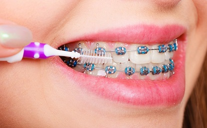 Toothbrush for misaligned teeth or braces
