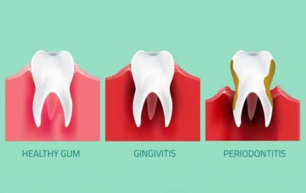 How do you fix gingivitis