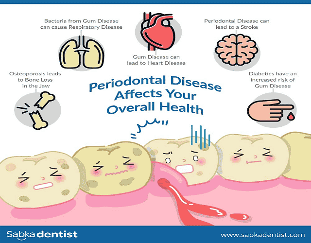 how Periodontal Disease affects overall health