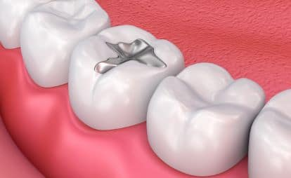 Silver Fillings Facility in Bangalore