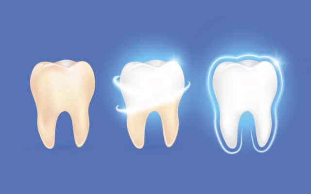 Tooth Abrasion and Tooth Erosion