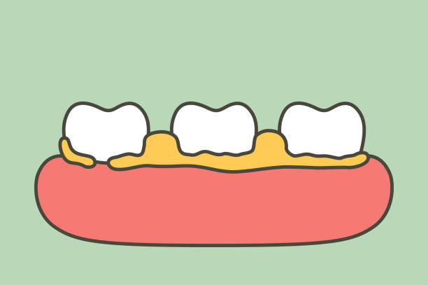What does dental plaque lead to