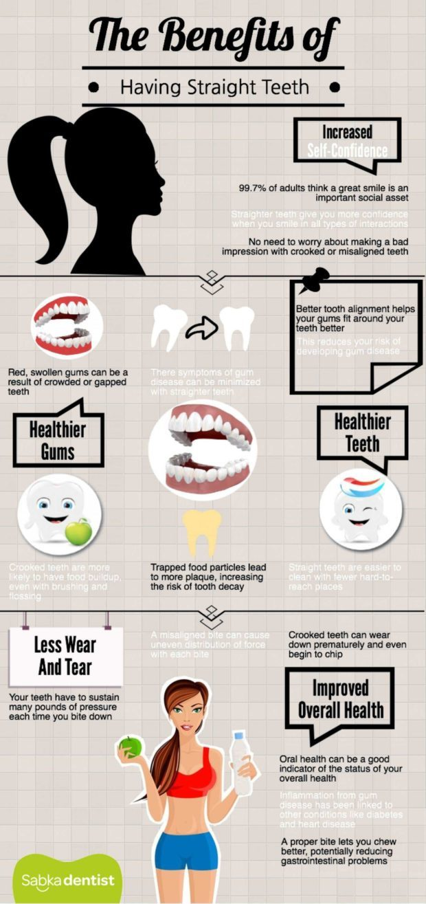 benefits of correct teeth alignment and braces