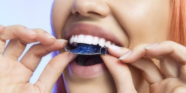 Insert the retainer in mouth