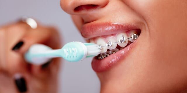 Brush Your Teeth After a Sugar filled Meal