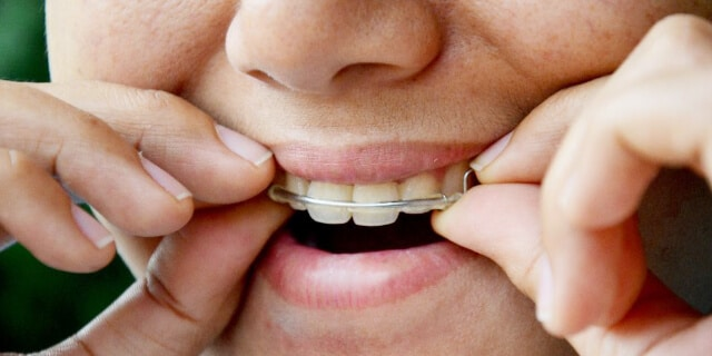 retainer over your teeth