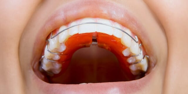 Tightly fit the retainer