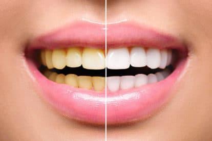दांत सफेद करना
